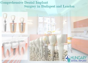 Dental Implant Solutions in Budapest