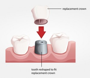 Illustration of a dental crown procedure