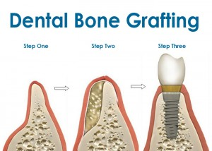 bone-graft