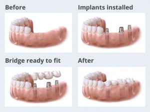 implants-multiple-teeth-graphic