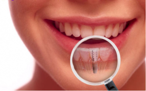 procedures-of-cosmetic-dentistry