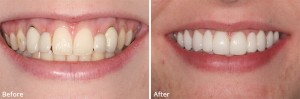 perfect-smile-spa-before-&-after-48