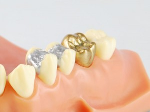 Gold and silver fillings