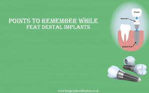 Points to Remember while Feat Dental Implants