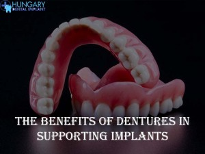 Dentures in Supporting Implants