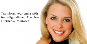 invisible clear aligner