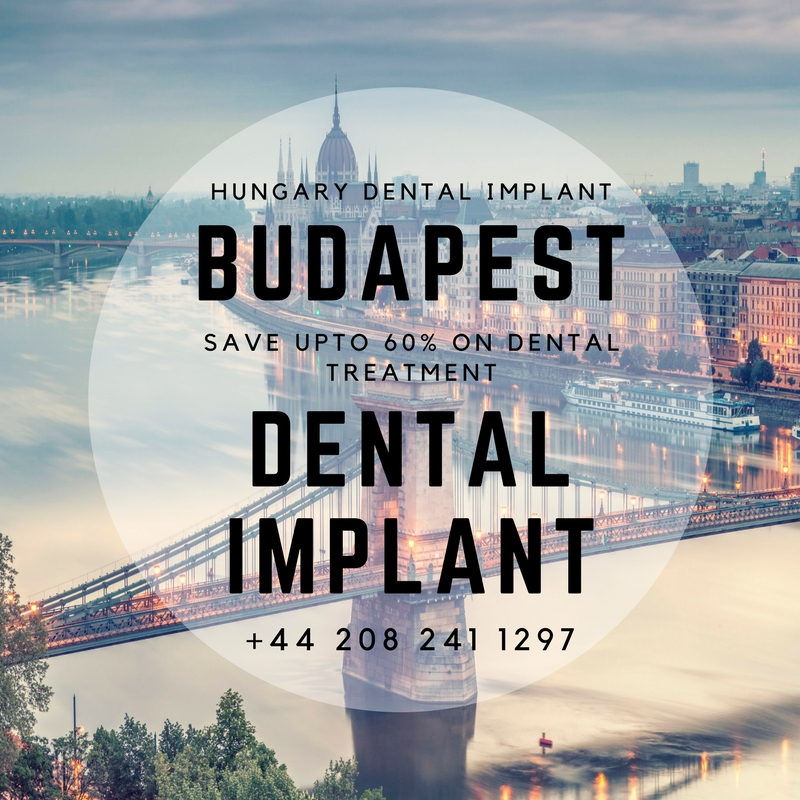Budapest Dental Implant Cost
