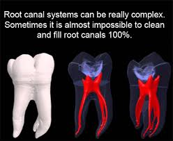 Root Canal in London