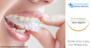 clear aligners hungary