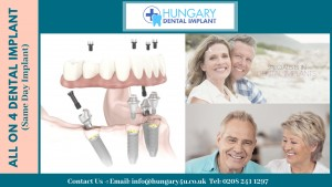 All on 4 Dental Implant