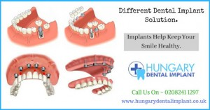 different implant solutions,